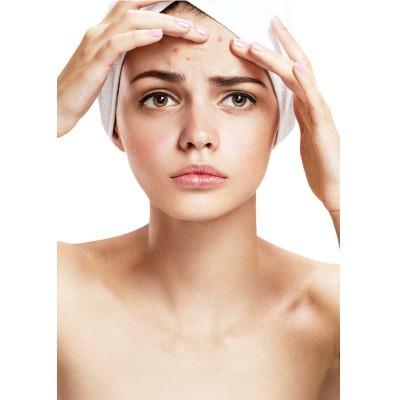 ส่วนประกอบ ผลิตภัณฑ์ช่วยลดปัญหาสิว  (Anti-acne)