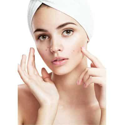 ส่วนประกอบ ผลิตภัณฑ์ลดปัญหาสิว(Acne)